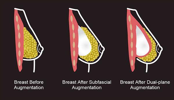 sub-fascial breast augmentation diagram