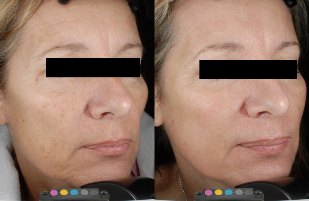 Tetra CoolPeel before and after