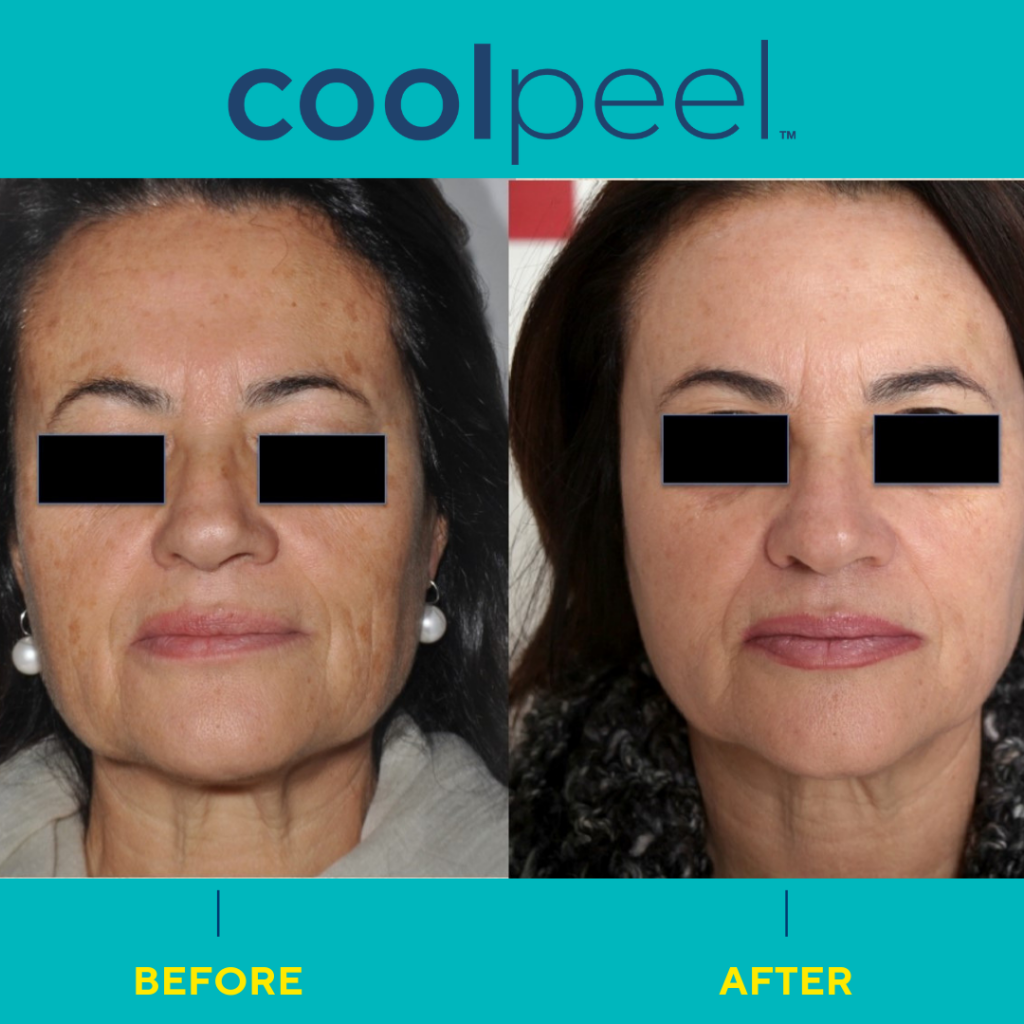 Coolpeel before and after
