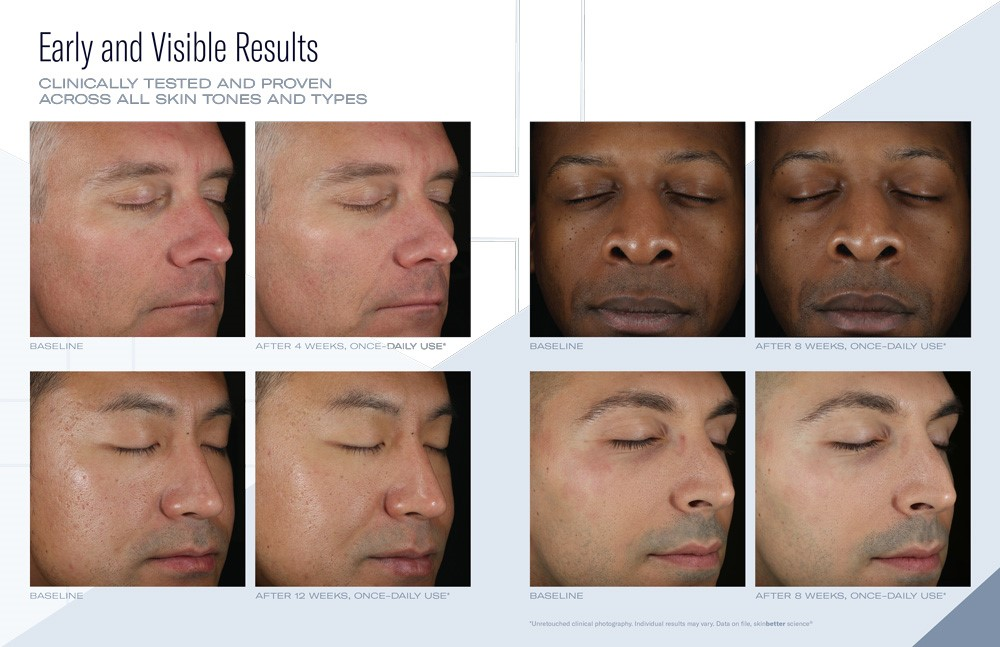 SkinBetter skincare before and afters - men