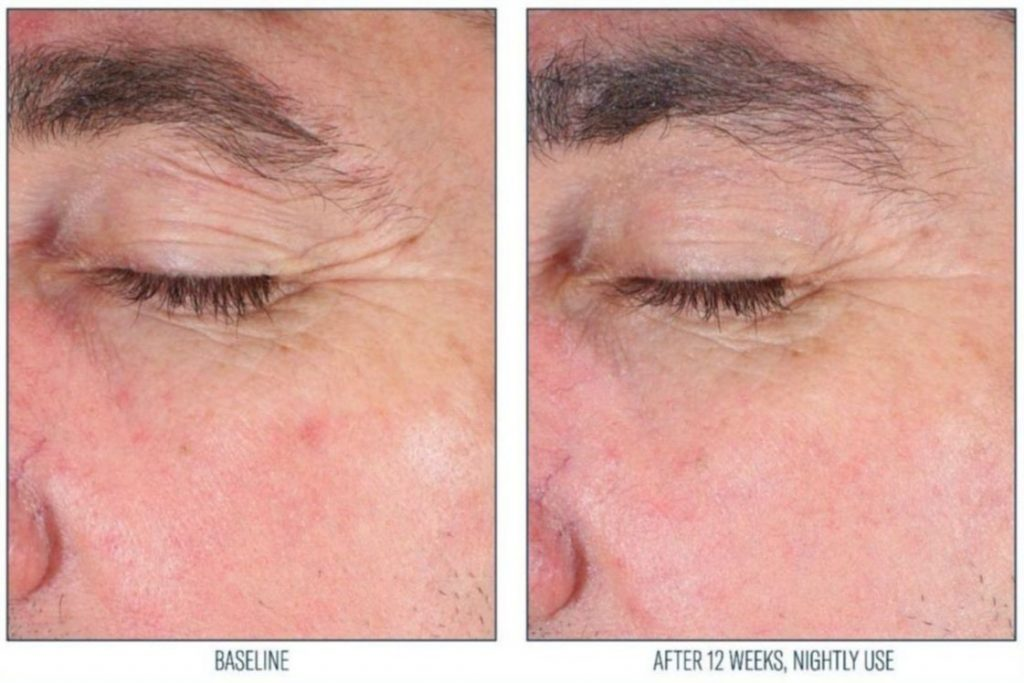 SkinBetter Eye Cream before and after