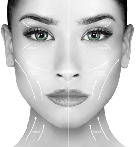 Diagram of the face showing treatment areas for Nuvissa Plasma Pen